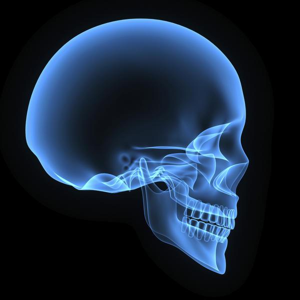 Cirurgia crânio